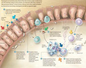 leaky-gut-increased-intestinal_permeability