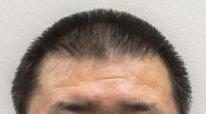 artas-hair-tansplant-surgery-hair-3mm-shorter