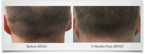 columbus_ohio_hair_transplant_donor_area-3_months_after
