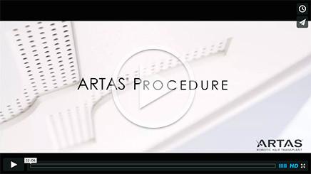 video_artas_hair_transplant_procedure