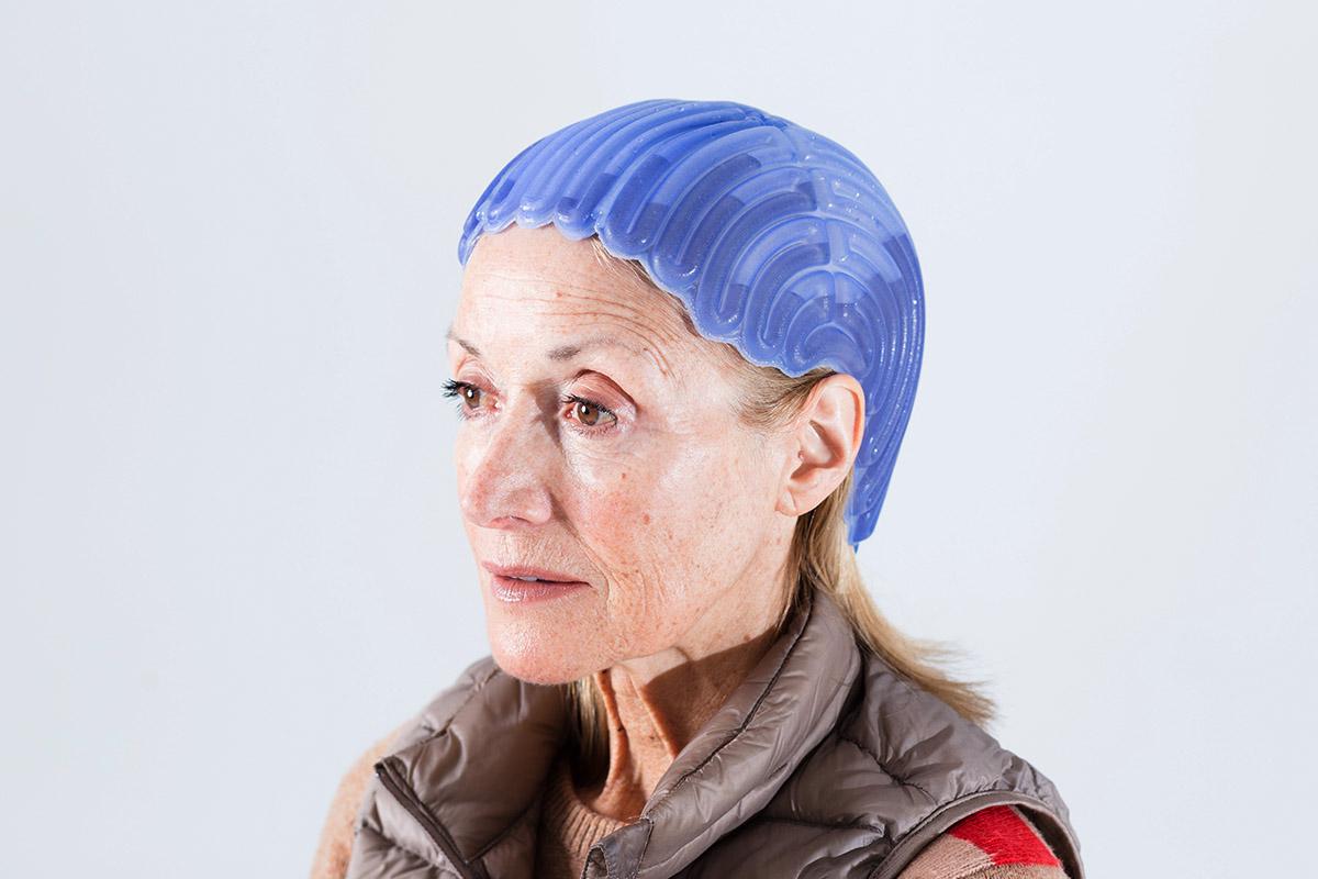 Reiradierea cancerelor de cap şi gât în era imunoterapiei