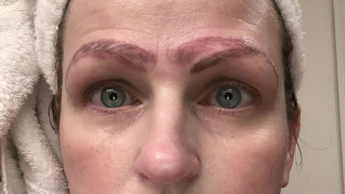 Microblading Gone Bad How To Fade Your